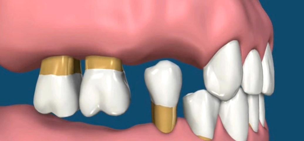 Perda de Dentes. Causas e Consequências