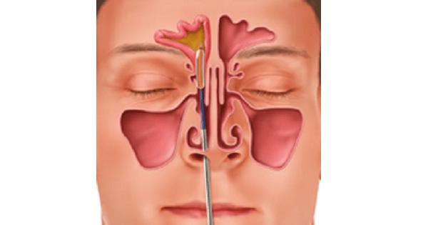 Acute Sinusitis