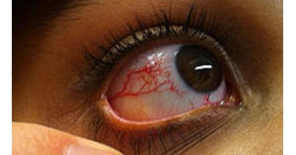 Ataxia telengiectasia