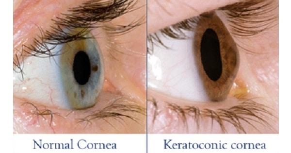 Keratoconus / Conical cornea