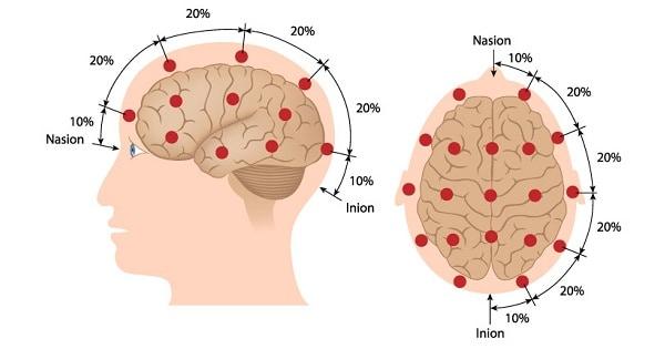 Electro-Encephalogram (Eeg)