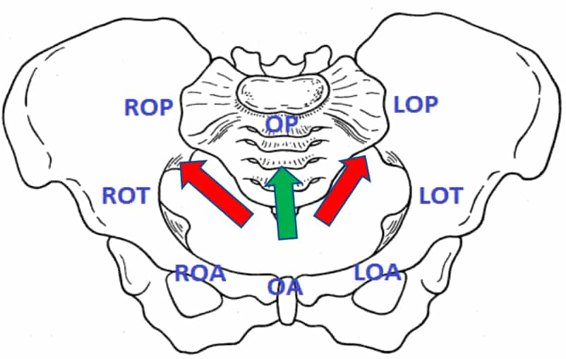 Occiput-Posterior Position (OP) - www.medicoapps.org
