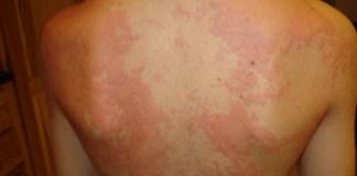 Alergia levaduras: Causas, Síntomas, Factores de Riesgo y Tratamiento