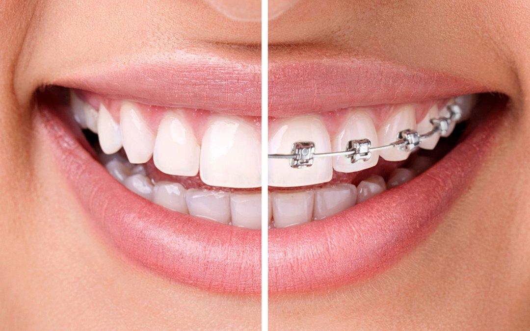 Las 7 fases o etapas de la ortodoncia