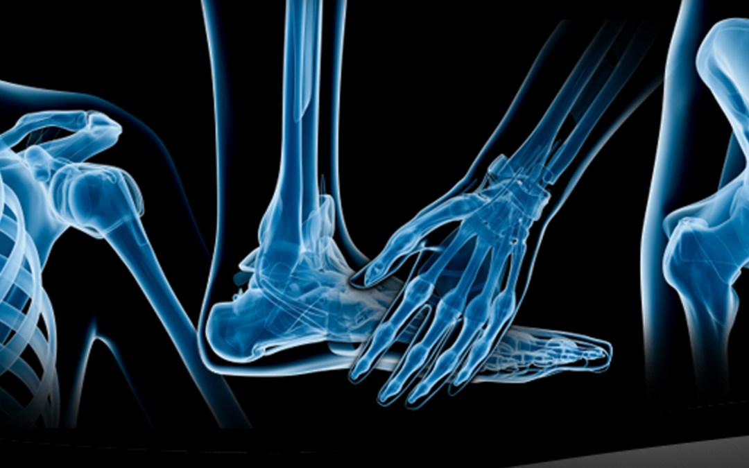 Tipos de cirugías ortopédicas