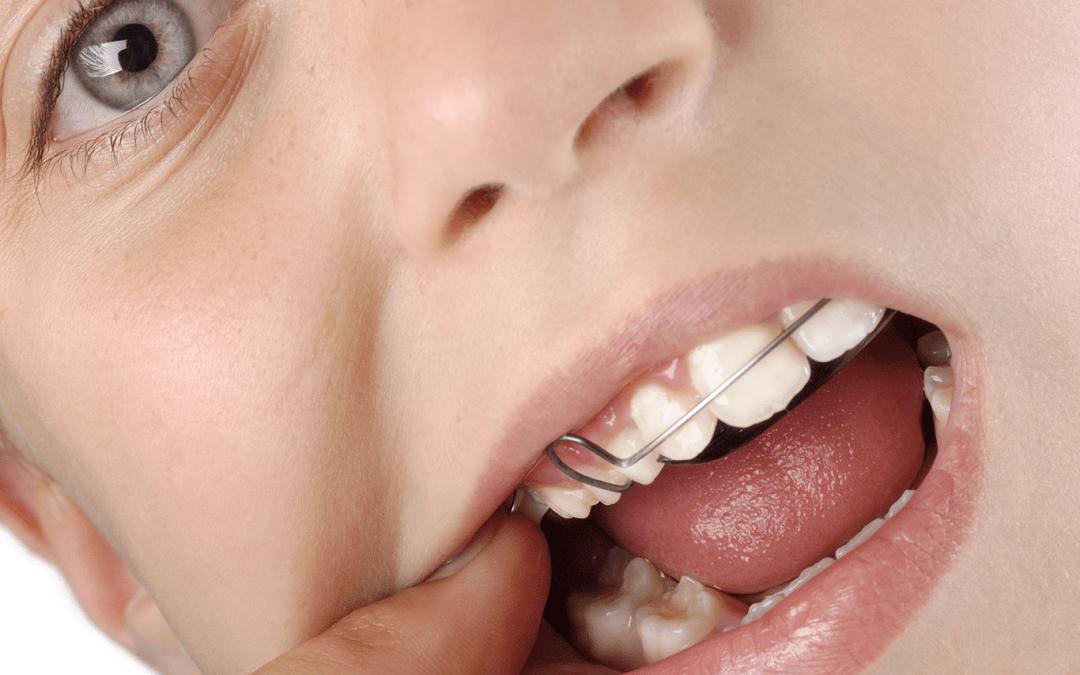 ¿Para qué sirve el paladar en la ortodoncia?