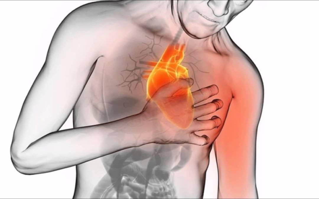 Ataque cardiáco