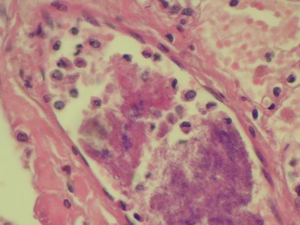 ¿Qué es la patología?
