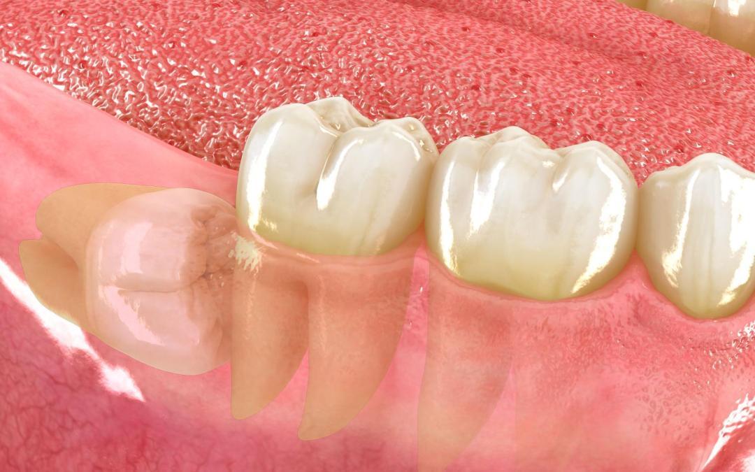 Cirugía del tercer molar