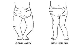 «GenuValgo» en ortopedia rodillas pegadas o en X