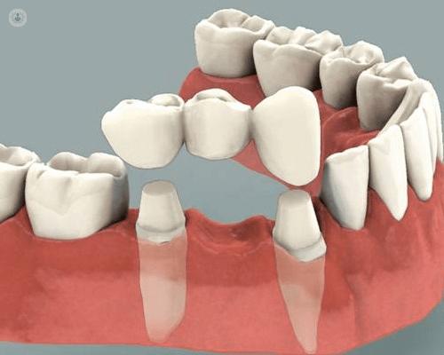 Puentes dentales: ¿cómo se hacen?