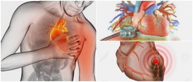 Ataque Cardiaco: