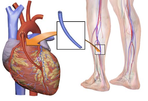 Bypass coronario: