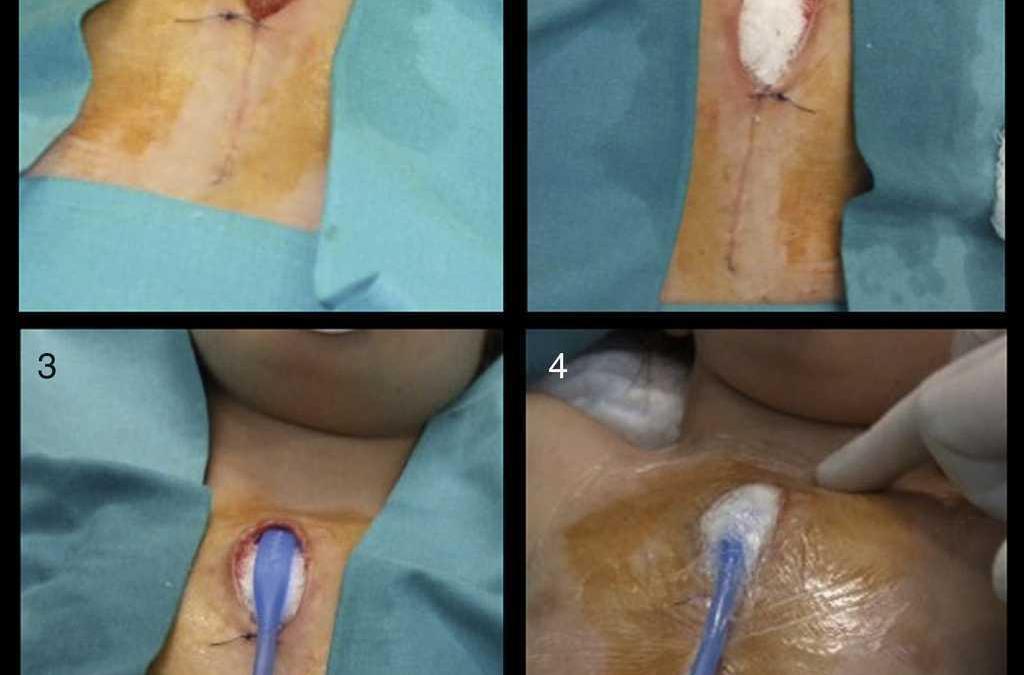 Terapia V.A.C. para heridas graves: