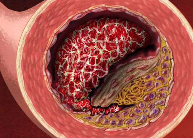 Stages Of Atherosclerotic Coronary Artery Disease