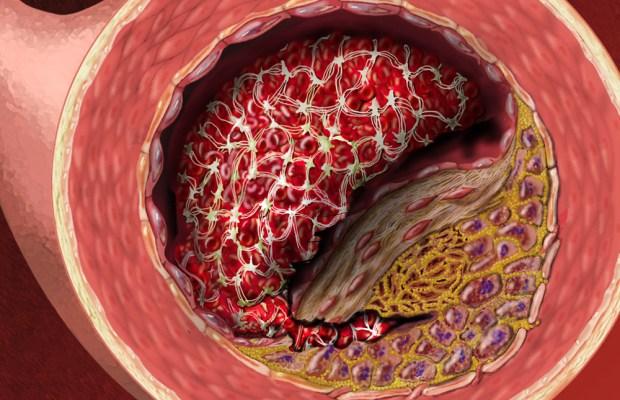 Heart Disease Medical Illustrations Animations By Laura Maaske