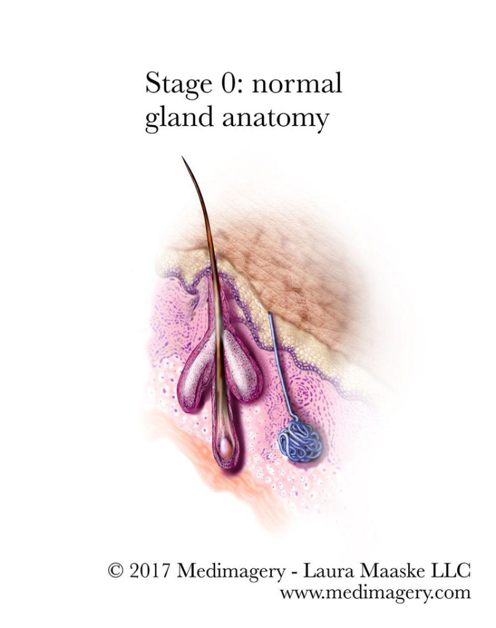 Acne Illustrations Pathology Inflammation Acne Vulgaris Development
