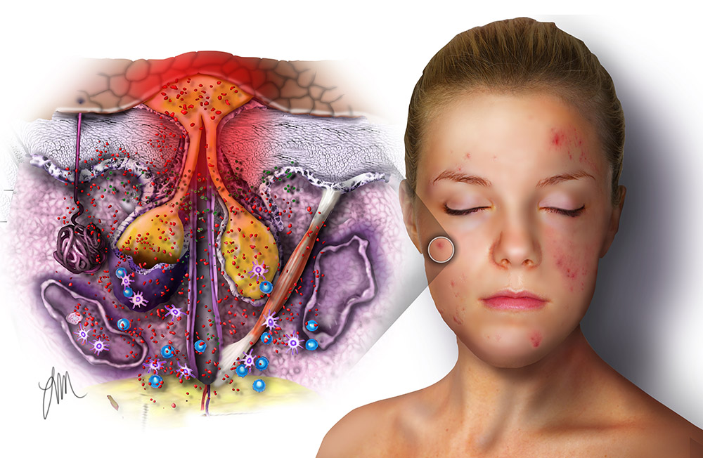 Acne Illustrations Archives Medical Illustrations Animations By