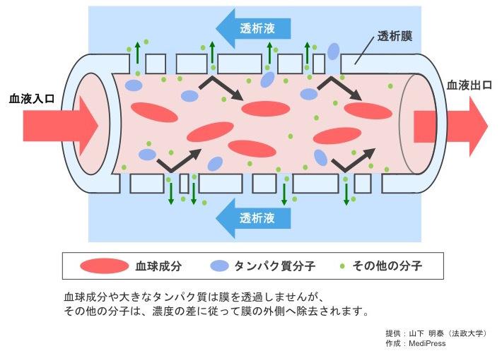 透析膜 | MediPress透析