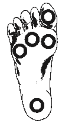diabetes-foot-diagram