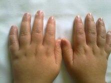 S. di Kawasaki: esfoliazione dita delle mani, la visione del dorso permette di evidenziare, meglio che nelle altre, un modesto edema