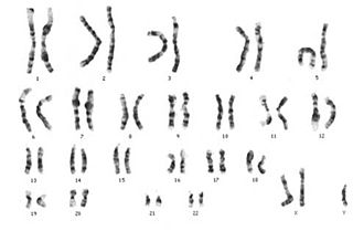 Sindrome di Klinefelter: cariotipo 47,XXY