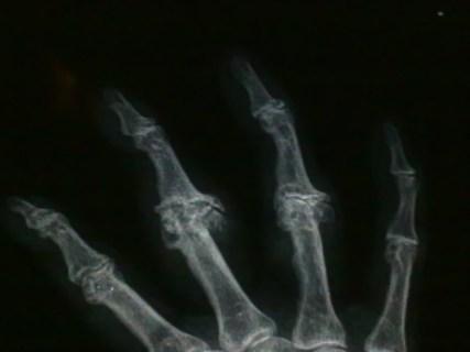 Marcate alterazioni degenerative articolazioni interfalangee
