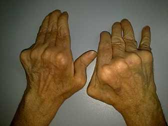 Artrite reumatoide: in un caso in stadio avanzato si notano le deformazioni articolari particolarmente accentuate a carico delle articolazioni metacarpo-falangee