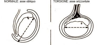 Asse del testicolo normale e in caso di torsione del funicolo spermatico