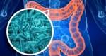 Probióticos para reducir la ansiedad