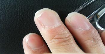 爪が割れやすいのはなぜなの?爪が割れる原因3つを知り ...