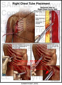 Right Chest Tube Placement  R15607_02XG