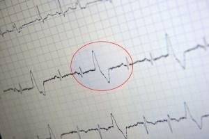 Herzrhythmusstoerung_EKG2 Kopie