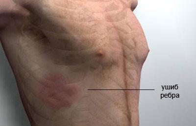 Мази при ушибе ребер лечение. Ушиб ребер — какие обезболивающие мази применяют