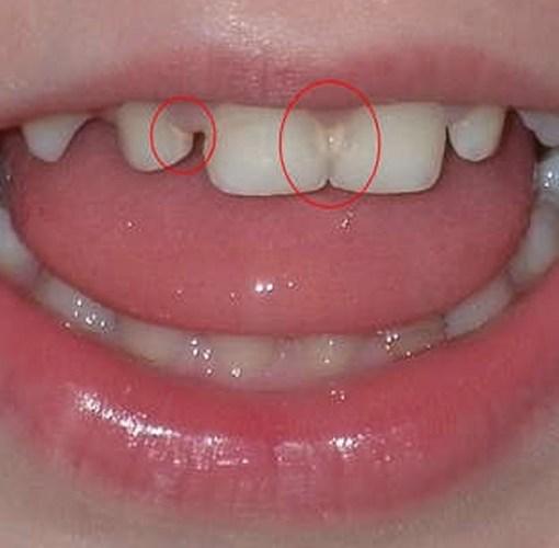 Курсовая работа - Кариес зубов в сменном прикусе. Эффективность фтор содержащих препаратов при лечении кариеса зубов в сменном прикусе