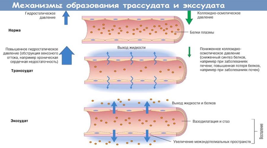 Исследование жидкостей из серозных полостей