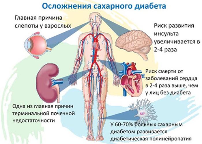 Зависимость развития осложнения сахарного диабета от типа диабета и длительности заболевания