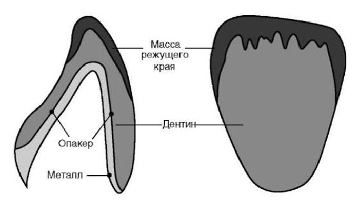 Этапы изготовления металлокерамических конструкции