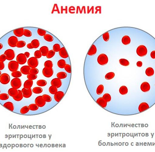 Презентация - Анемии