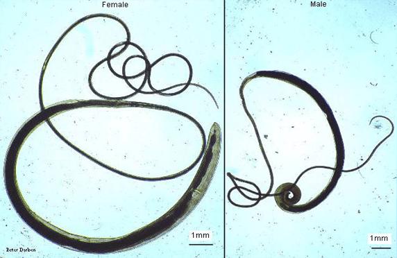 Trichuris trichiura (Cacing Cambuk)