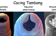 Cacing Tambang (Hook Worm)