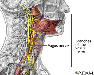 Role of the vagus nerve in epilepsy: MedlinePlus Medical Encyclopedia Image