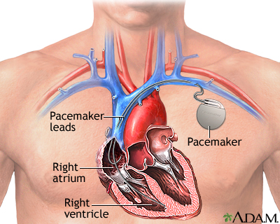 Heart pacemaker: MedlinePlus Medical Encyclopedia