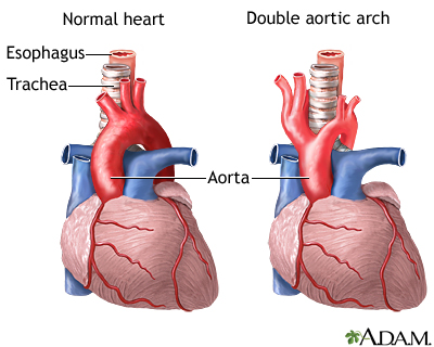 Diagram of double aortic arch.