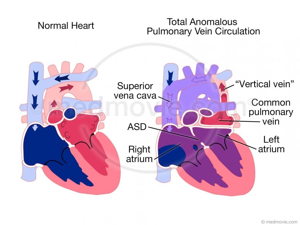 Total Anomalous Pulmonary Vein Circulation Tapvc