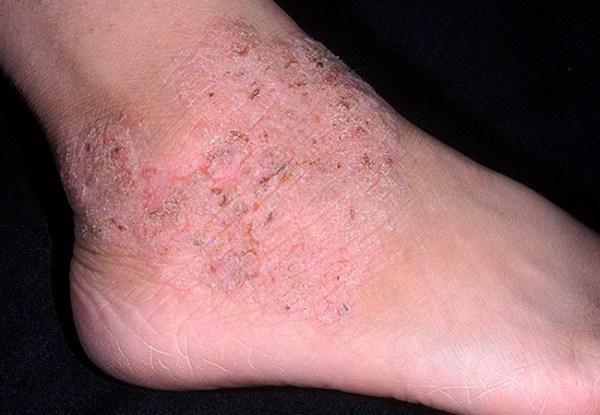 Дерматит на ногах: фото, лечение, виды, симптомы и причины