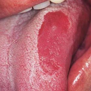 Глоссит языка, лечение и симптомы глоссита