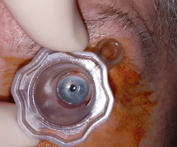 Intravitreal Injection Theory Course