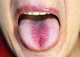 Глоссит: лечение, симптомы, фото воспаления языка - Medside.ru