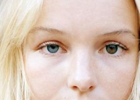 Гетерохромия көзінің суреті